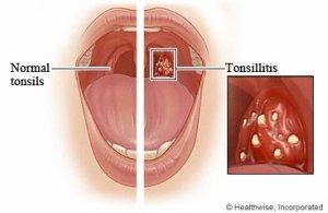 tonsil mempunyai fungsi yang sangat penting