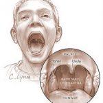 obat batuk radang tenggorokan anak