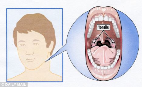 Penyebab, Gejala dan Pencegahan Amandel (radang)