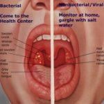 obat radang tenggorokan paling ampuh